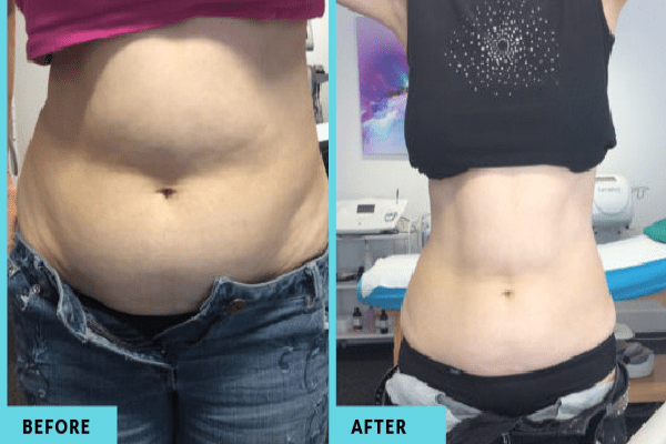 fat freezing Greensborough